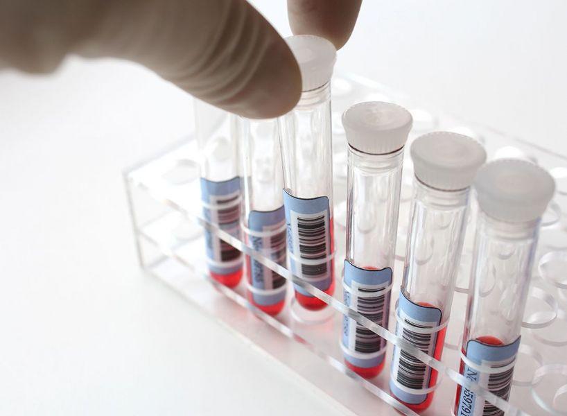 Analisi del sangue - quando e quali fare